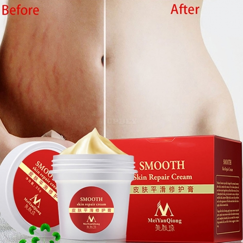 Smooth Skin Repair Cream for Stretch Marks Scar Removal Skin Repair Body Cream